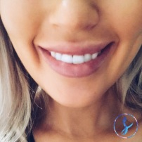 Lip Augmentation | 1ml filler