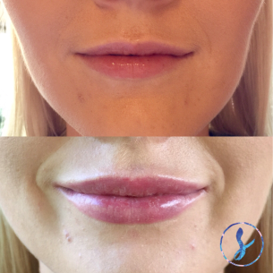 LIPS | this client wanted a subtle plump and more defined lip borders | 0.5ml dermal filler