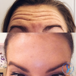 Anti-wrinkle injections to frontalis (forehead).