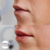 This client's second treatment to add volume, especially to her narrow top lip | 1ml dermal filler