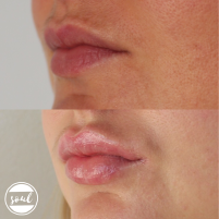 This lovely client wanted to enhance her naturally beautiful vermilion border | 1ml dermal filler
